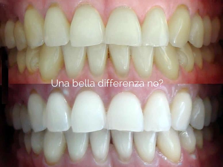 Promozione Sbiancamento Dentale